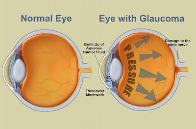 http://mypotik.blogspot.com/2017/09/penyebab-dan-gejala-penyakit-glaukoma.html