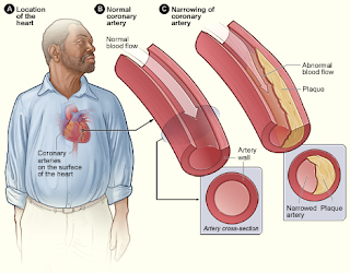 Pengobatan Penyakit Kolesterol