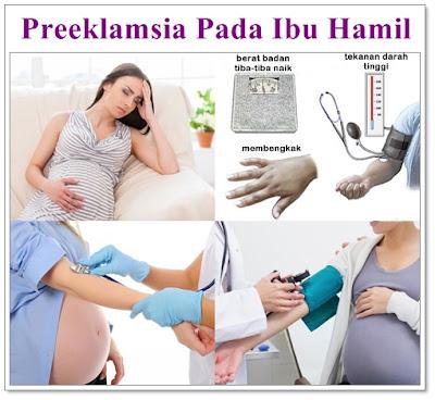 Obat Preeklamsia Untuk ibu hamil Yang Ampuh Dan Aman