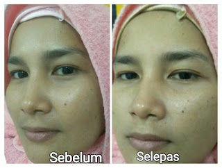 kursus spa, kursus mobile spa, TWB, The Walking Beauty, belajar spa, kursus berpantang, jana income, cari kerja, cari duit, youth shaklee