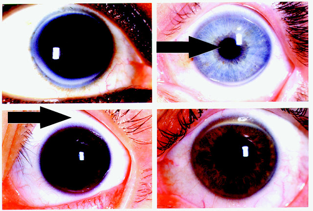 rings in ophthalmology