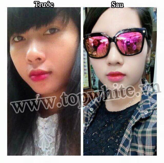 Trước và sau khi sử dụng kem dưỡng da ban đêm Top White D2