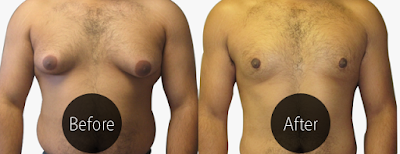 Gynecomastia Surgery Before & After Pictures