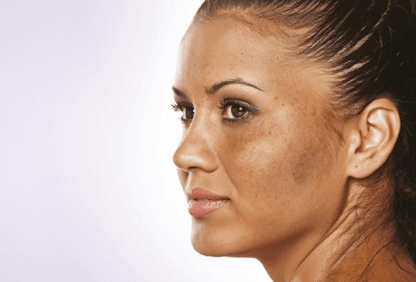 خلطة لازالة الكلف من الوجه %25D8%25AE%25D9%2584