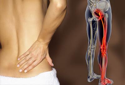 علاج السياتيك  ألم عرق النسا - الانزلاق الغضروفي (بوزلوم) الديسك
