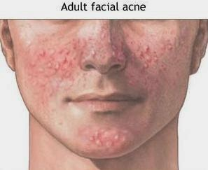 Acne And How To Get Rid Of Acne