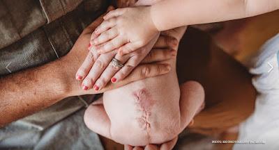 Beautiful family photos feature baby who had prenatal spina bifida surgery