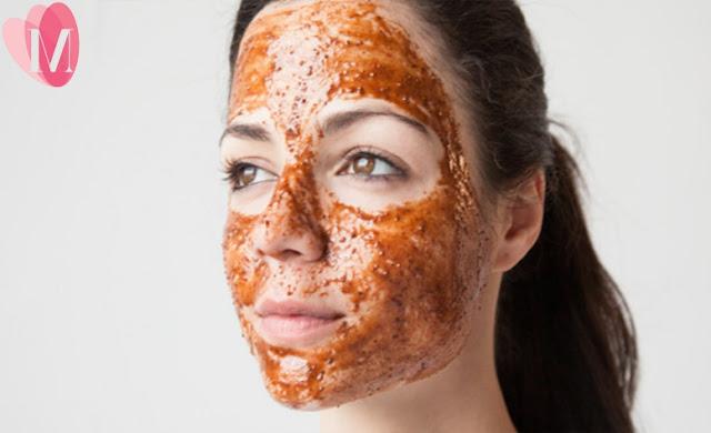 Kinh nghiệm chăm sóc da nhờn bị mụn tại nhà