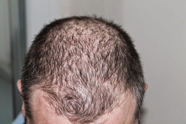 mengatasi kebotakan rambut