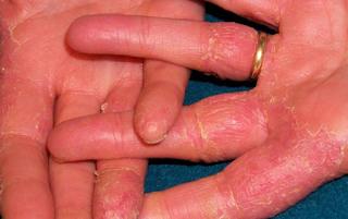 iritasi kulit pada bagian tubuh
