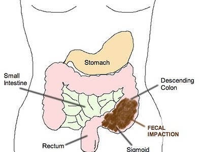Trulance/Plecanatide Cost, Side effects, Dosage, Uses for Chronic Idiopathic Constipation (CIC)
