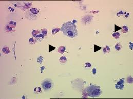 Moco eosinofilos nasal en
