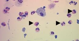 valor de referencia eosinofilos en moco nasal