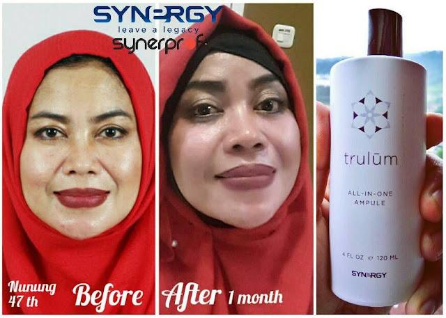 Jual Serum Penghilang Jerawat Trulum Skincare Cempaka Kota Banjarbaru