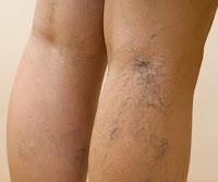 vene varicose alle gambe, stadio iniziale