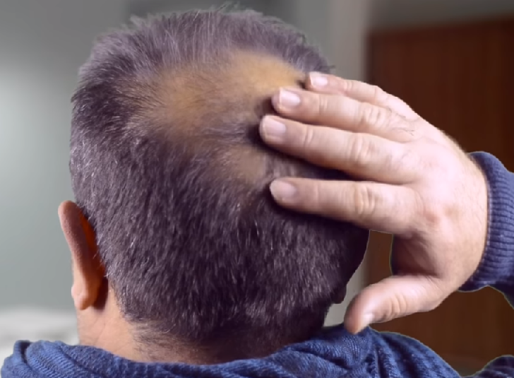 Main causes of hair loss and how to prevent them