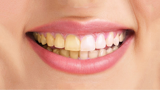 Gampang Ini Cara Membersihkan Karang Gigi Dengan Cepat Wajib Baca