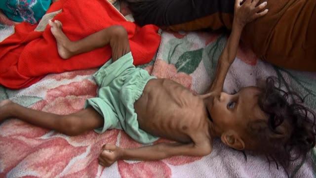 ONU alerta: Más de 17 millones de yemeníes no pueden alimentarse