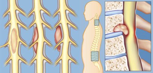 Cara Mengobati Kanker Sumsum Tulang Belakang, Pengobatan Paling Mujarab