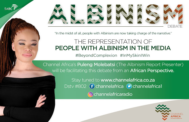 Channel Africa Tackles Albinism Issues As Part Of Human Rights