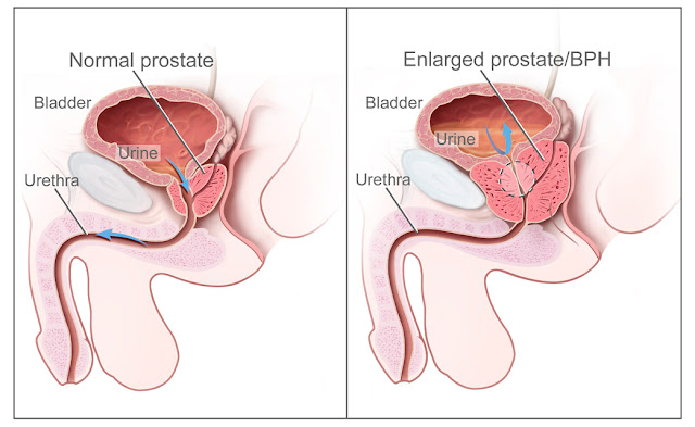 Prostate Enlargement Home Remedy