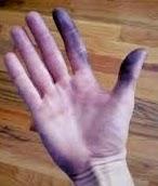 cara mudah menghilangkan bekas spidol di tangan, cara mudah membersihkan noda cat minyak di tangan