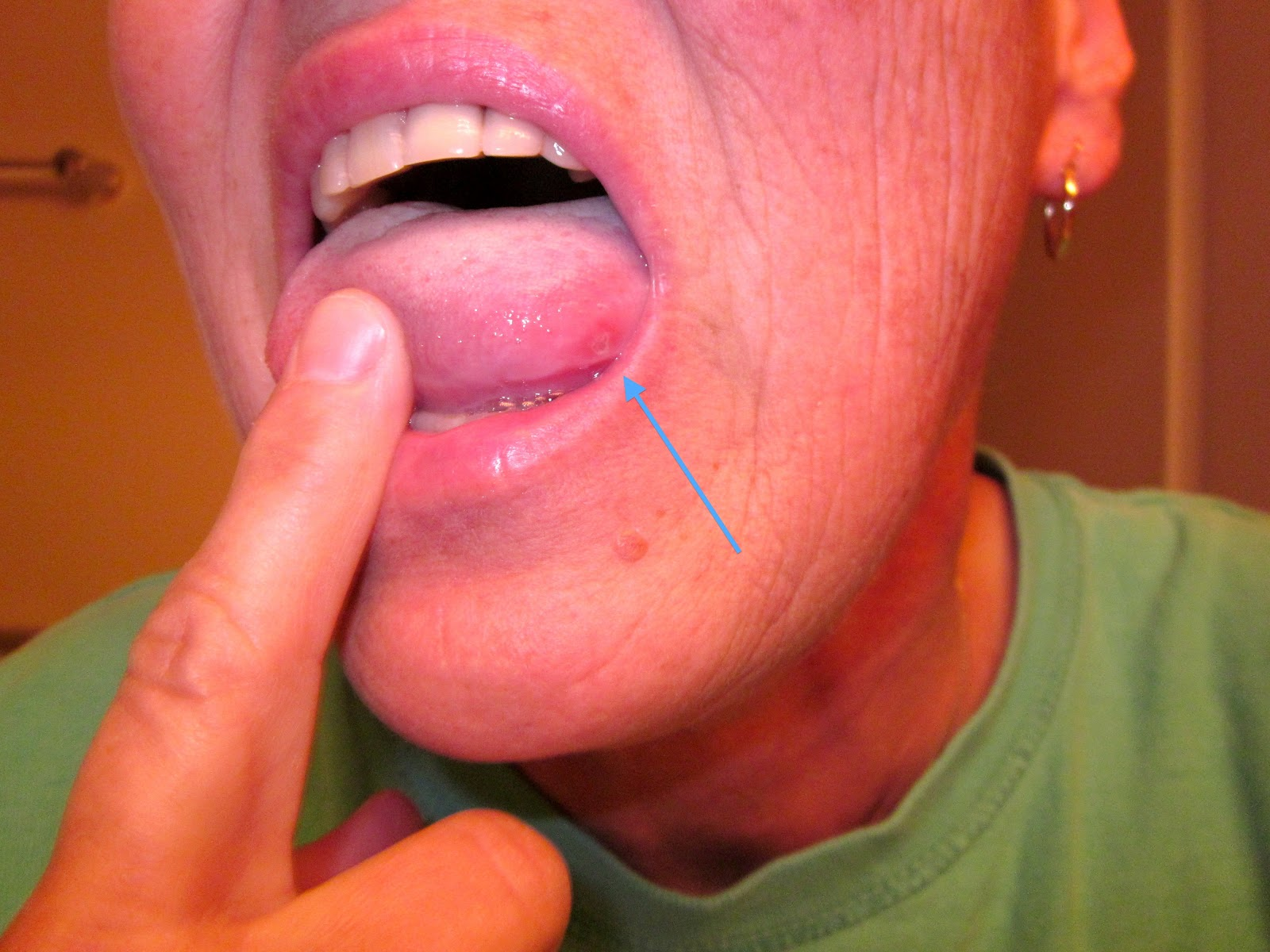 jm's Adventure with Multiple Myeloma: Darn Canker Sore ...