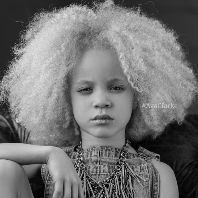 Ava Clark - A Young Girl is an albino, come to be an african american model