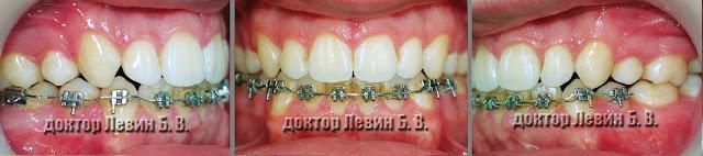 Три фото зубов характеризующие прикус пациента на 23 месяце лечения брекетами.