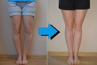 A person with knock knees has a large gap between their feet