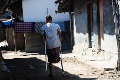 buruh migran, cacat,tki,tenaga kerja indonesia