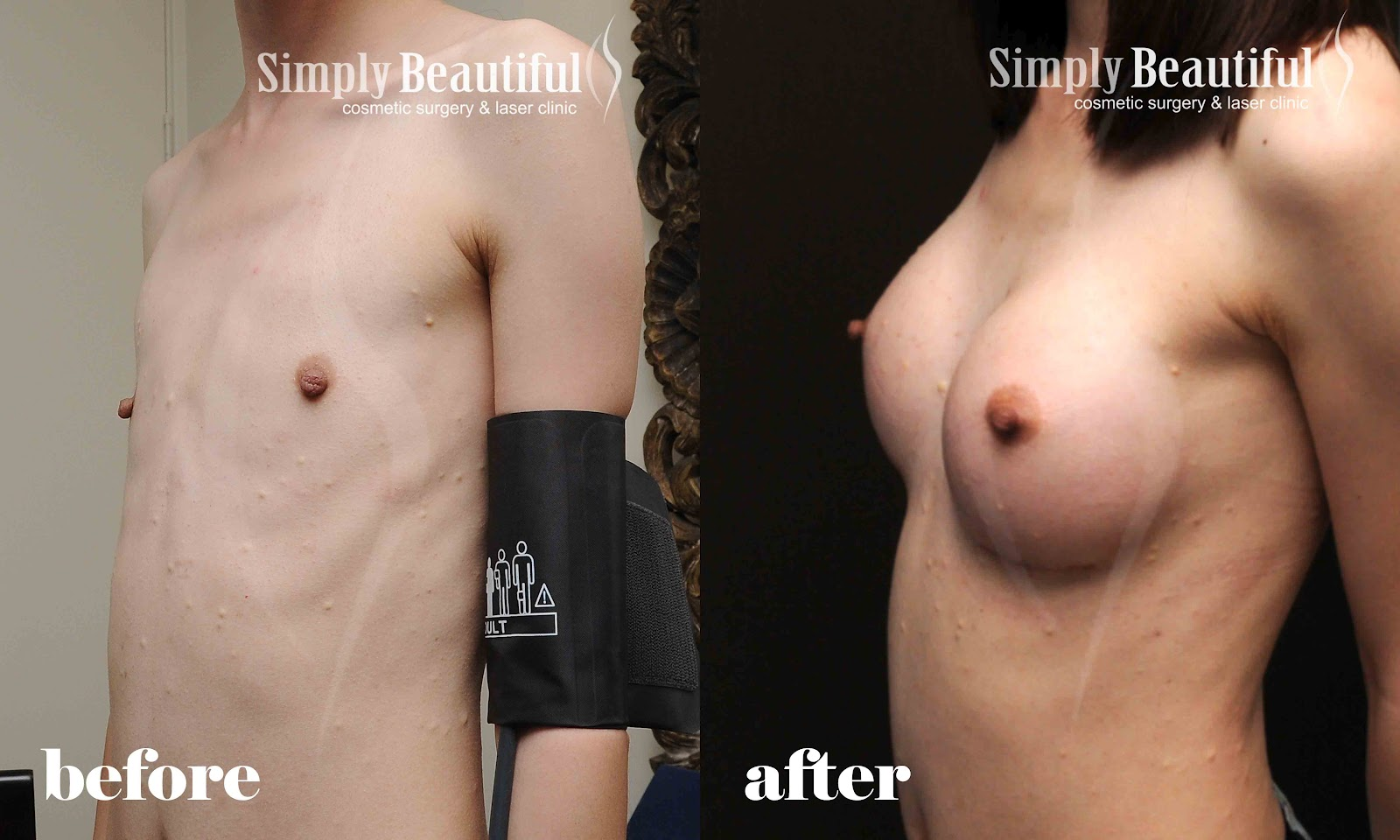 boob before and after jpg 1080x810