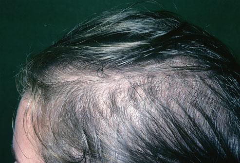 وصفة طبيعية لتكثيف الشعر الخفيف