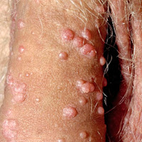 genital warts recurrence pictures