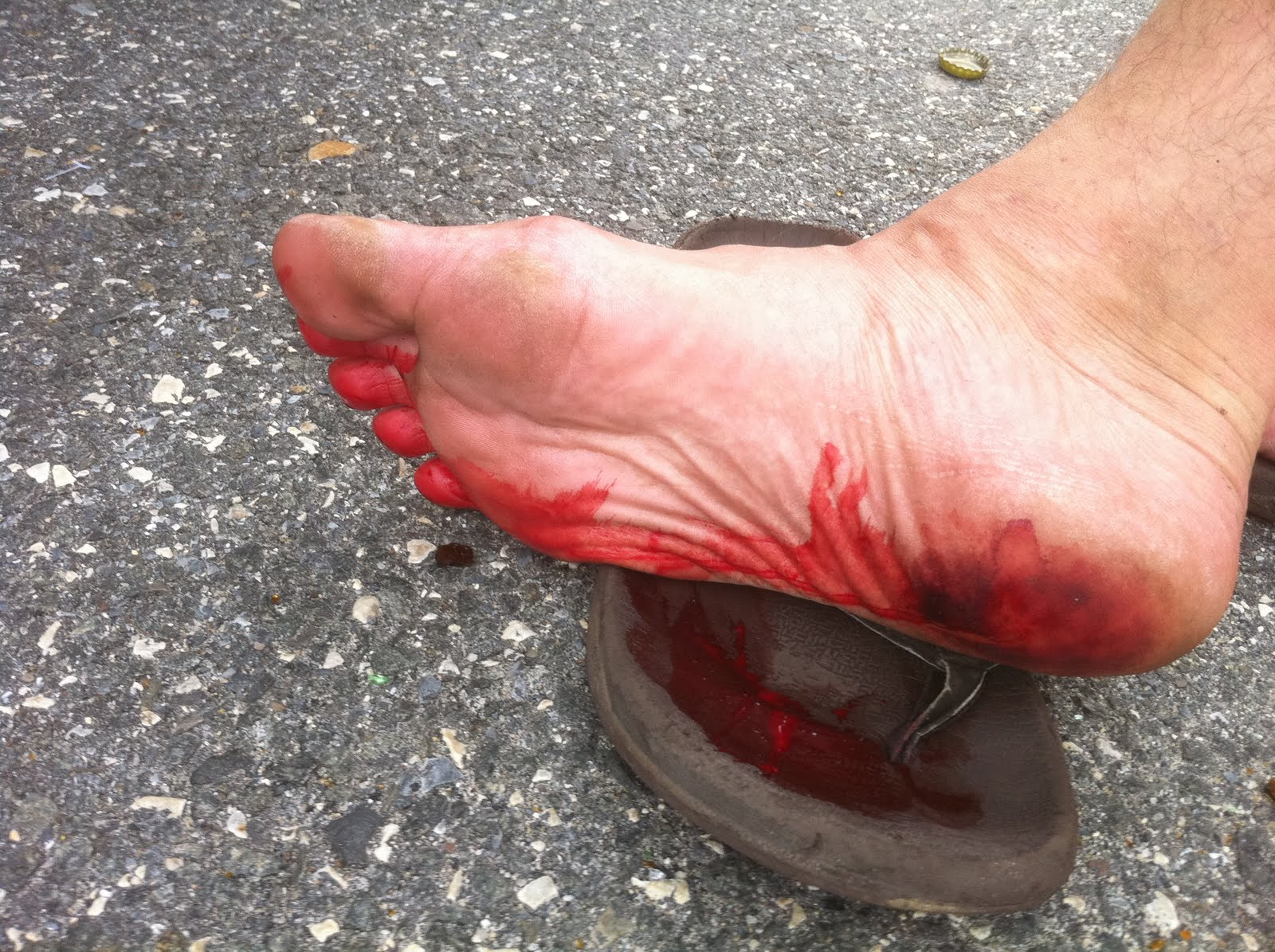 PODIATRIST DISCUSSES REMOVING GLASS FROM YOUR FOOT - PODIATRIST