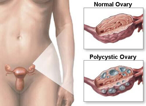5 Natural Remedies For Treatment Of Polycystic Ovarian Syndrome (PCOS)