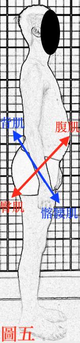 脊椎側彎, 脊椎側彎背架, 脊椎度數,脊椎側彎矯正, 脊椎側彎治療, 脊椎側彎 物理治療