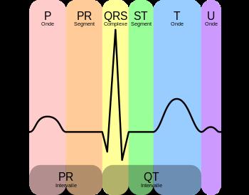 Llectrocardiogramme ECG  Rcap IDE