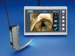 Video Laryngoscopy vs Direct Laryngoscopy on Successful
