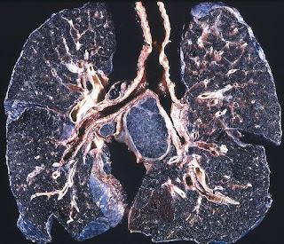 Pulmones negros