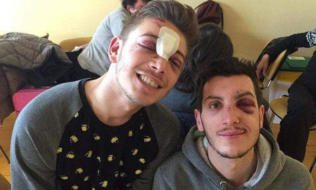 Milano: due ragazzi gay aggrediti e picchiati all'uscita di un locale