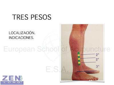 Medicina del deporte y lesiones deportivas con acupuntura