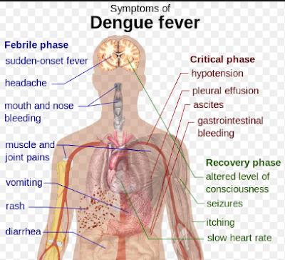 Pengalaman Komplikasi dari Demam Berdarah / DBD / DHF