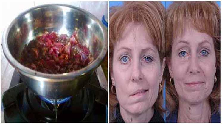 Dokter Saja Terkejut Dengan ke Ajaiban Ini, STROKE Sembuh, Darah Tinggi Hilang Total Dengan Kulit Bawang Merah... Begini Cara Membuatnya!