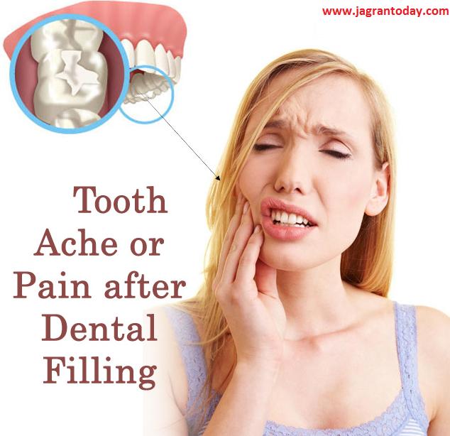 दांतों में फीलिंग क्यों है जरूरी