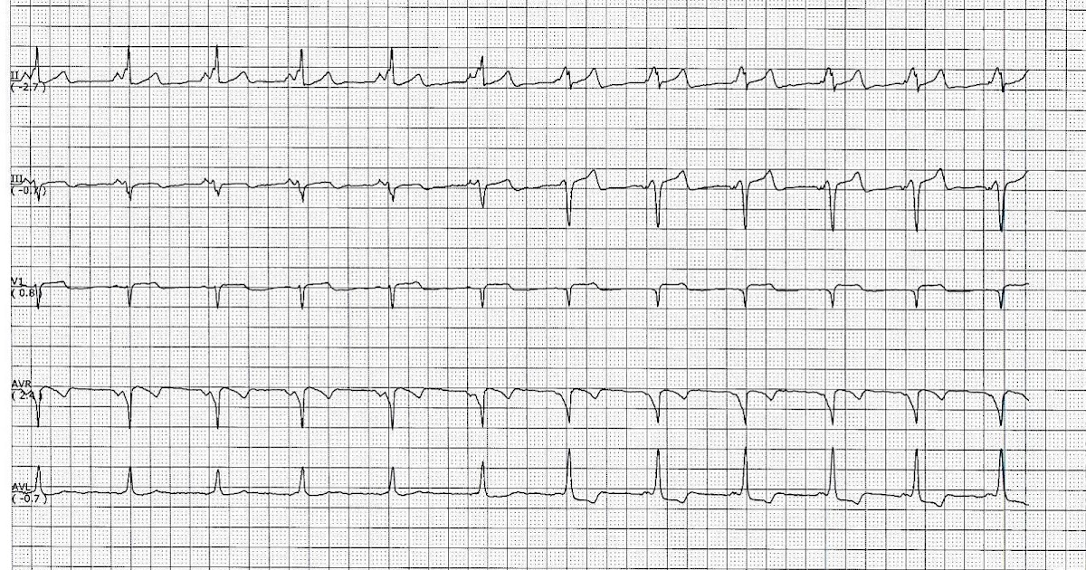 ECG Rhythms: The Concertina Effect of Pre-excitation