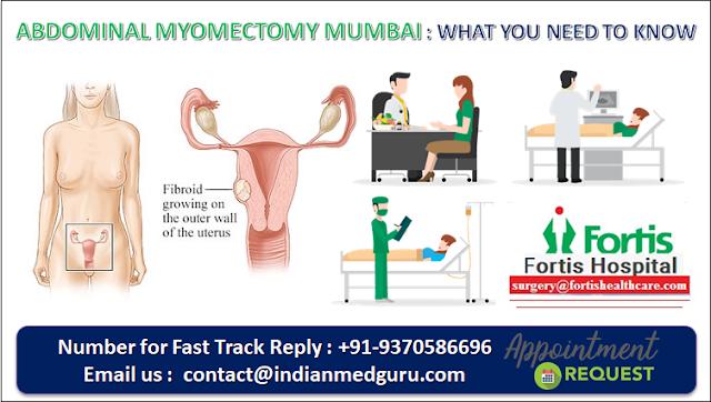 Abdominal Myomectomy Mumbai