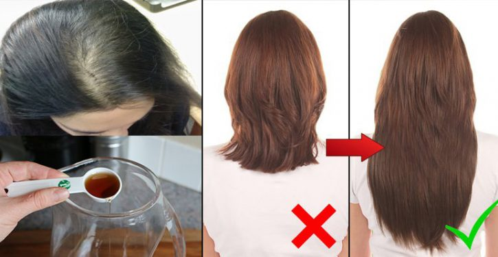 Add This To Your Shampoo And Say Goodbye To Hair Loss Forever