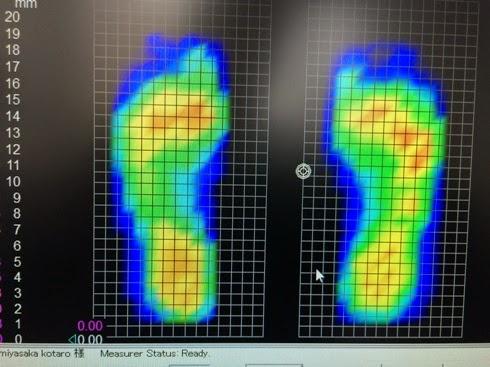 これが私の足圧バランスです。
