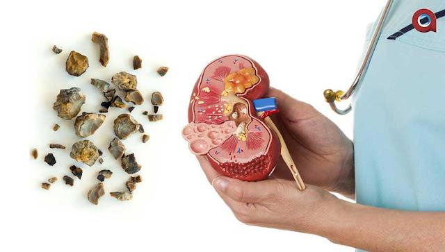Penyebab dan Gejala Penyakit Batu Ginjal
